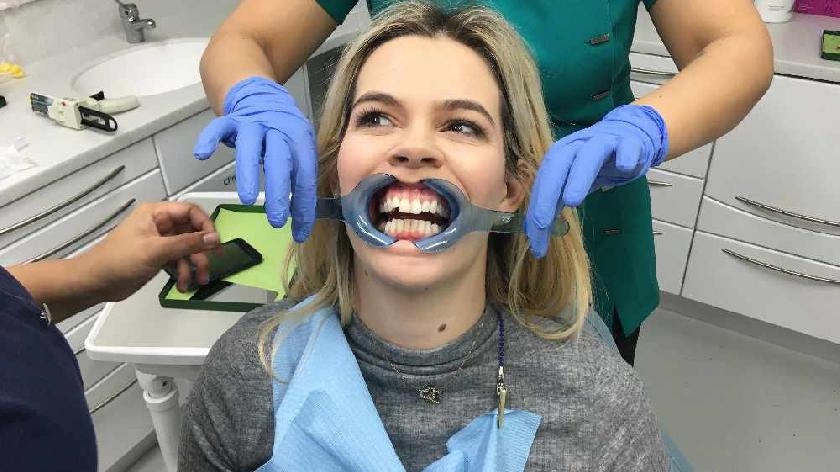 Jo teeth 2